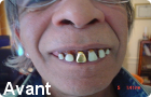 Appareil dentaire canulor