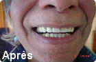 apapreil dentaire