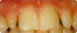 Esthetique dentaire implant