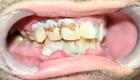 plan de traitement dent